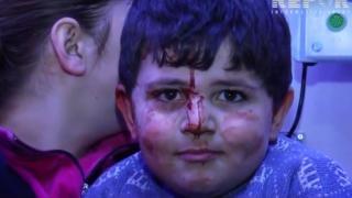 Ermeni zulmüne gülerek karşılık veren çocuk