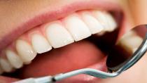 Diş taşlarından kurtulmak için doğal yöntemler